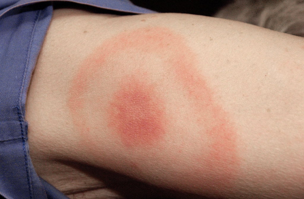 Lyme disease rash (NHS)
