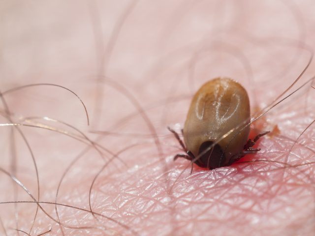 Tick biting lyme disease